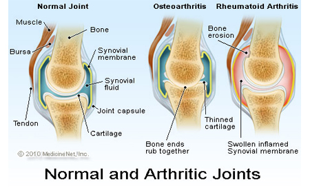 What are the other types of Arthritis?